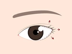 目尻切開の効果