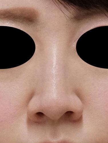 小鼻縮小(フラップ法) 正面 3ヶ月後