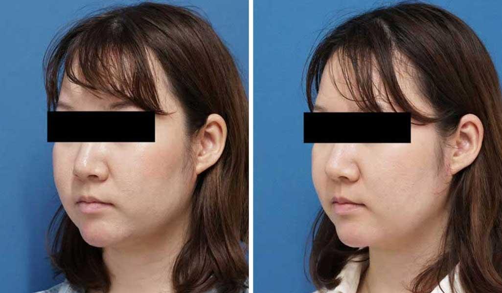 BNLS(ホホ・フェイスライン下・あご下) 3回 症例写真 左斜め