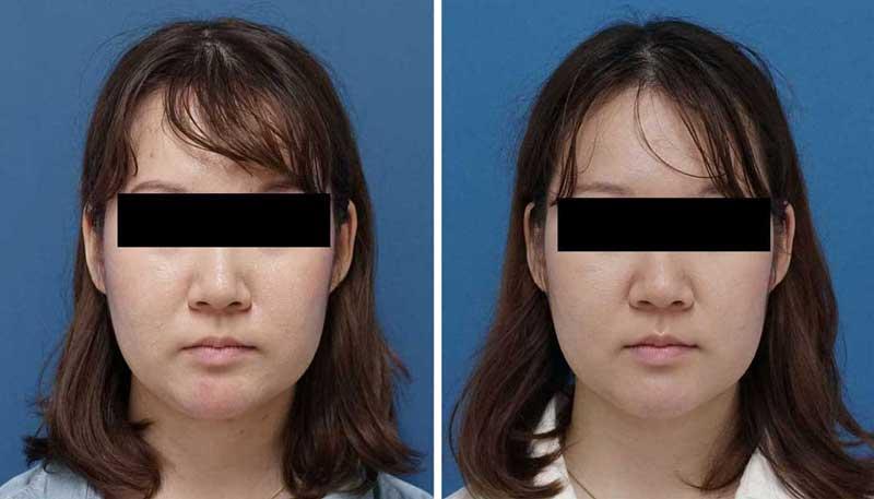 BNLS(ホホ・フェイスライン下・あご下) 3回 症例写真 正面