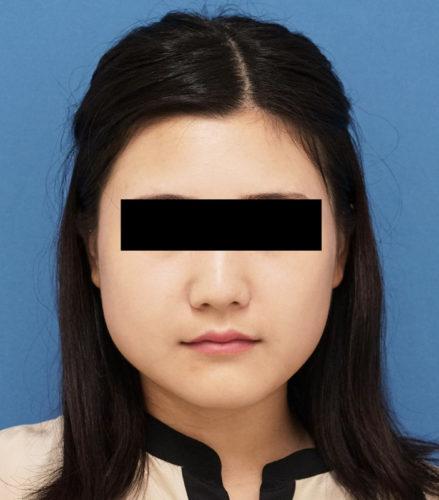 アラガン超強力小顔ボトックス 手術前