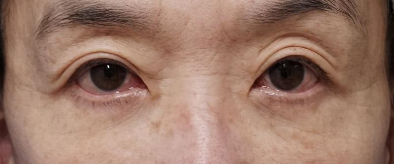 ベビーコラーゲン(目の下) 1週間後のBefore写真