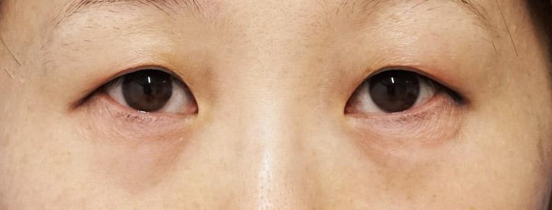 下眼瞼下制+目の下脂肪とり 1ヶ月後のBefore写真