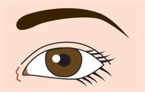 目頭切開(W形成)の切開線