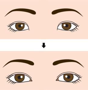 目頭切開の目の変化イラスト