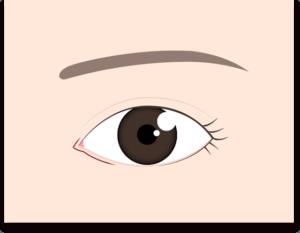 目頭切開(リドレープ法)の切開線