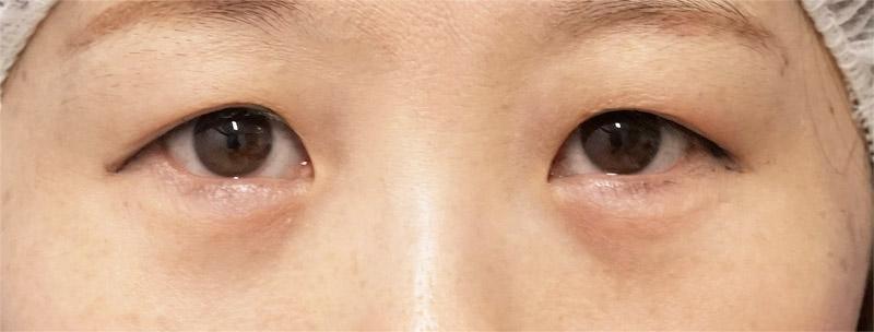 下眼瞼下制+目の下脂肪とり 1ヶ月後のAfterの写真