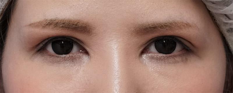 二重全切開他院修正、眼瞼下垂 1ヶ月後