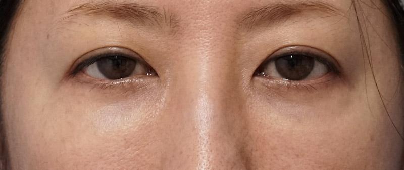 他院目の下脂肪注入後、しこり修正 手術前