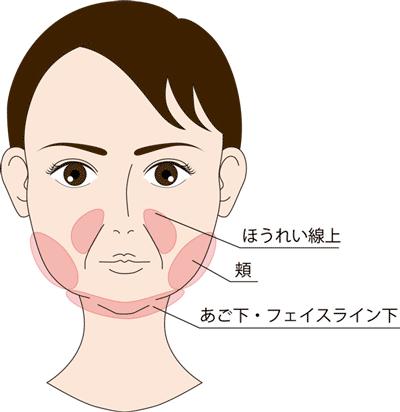 HIFU-皮下脂肪がつきやすい部分
