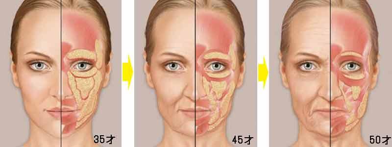 HIFU ハイフ 顔面老化進行図