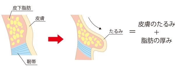 たるみは皮膚のたるみと脂肪の厚みが原因
