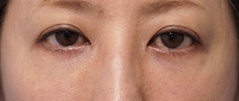 他院目の下脂肪注入後、しこり修正 1ヶ月後