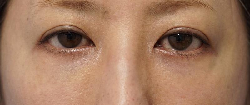 他院目の下脂肪注入後しこり修正 1ヶ月後のAfterの写真