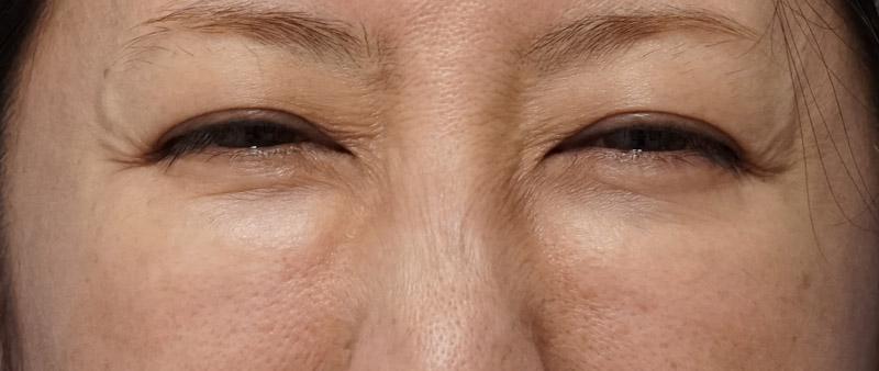 他院目の下脂肪注入後、しこり修正 笑顔時