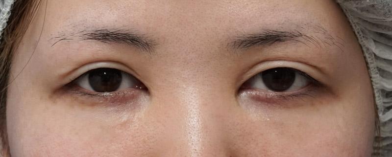 二重全切開他院修正、眼瞼下垂 1ヶ月後のBefore写真