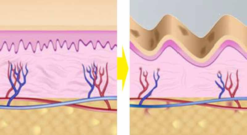 HIFU-ハイフ-肌老化イメージ図