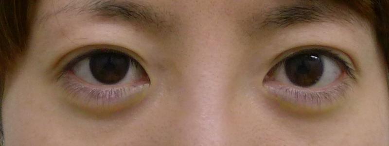 切らない眼瞼下垂術後