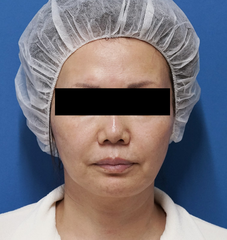 コンデンス脂肪注入(ゴルゴ線,法令線,目の下)、ミントリフトミニ12本のBefore写真
