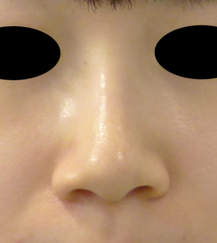 小鼻縮小(flap法、内側法)術前