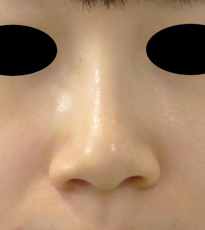 小鼻縮小(flap法) 1か月後のBefore写真