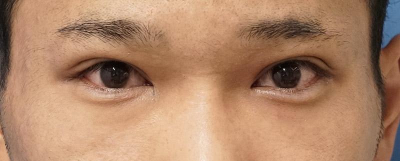 二重全切開、眼瞼下垂、涙袋形成術後