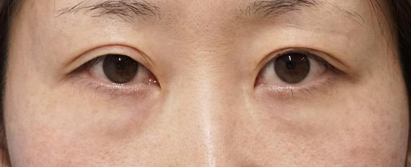 目の下脂肪取り、コンデンス脂肪注入 1週間後のBefore写真