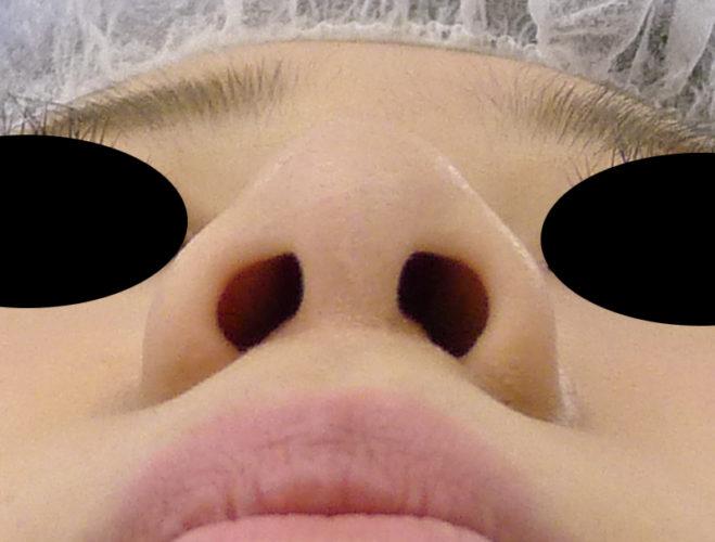 小鼻縮小(flap法、内側法)下から1か月後