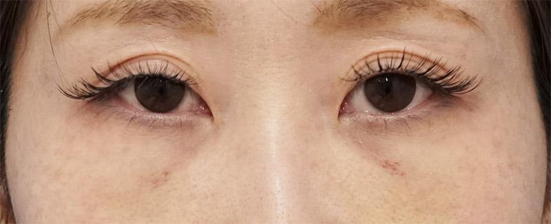目の下脂肪取り、コンデンス脂肪注入 1週間後のAfterの写真