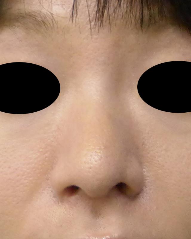小鼻縮小(内側法・flap法+外側法) 1か月後のAfterの写真
