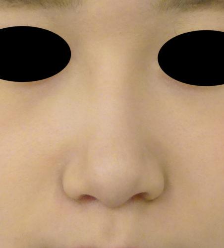 小鼻縮小(flap法、内側法)1か月後