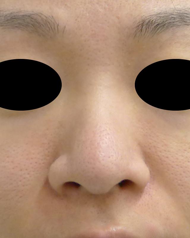 小鼻縮小(内側法・flap法+外側法) 1か月後のBefore写真