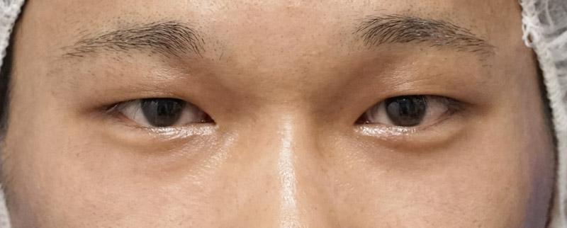 二重全切開、眼瞼下垂、涙袋形成術前