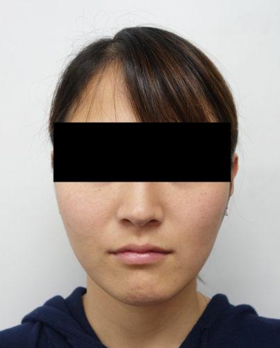 脂肪吸引(ホホ・あご下)、強力小顔ボトックス 3ヶ月後