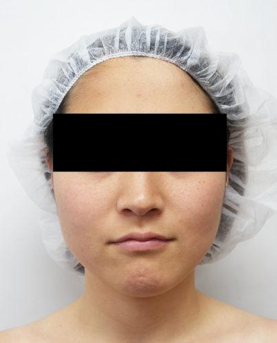 脂肪吸引(ホホ・あご下)、強力小顔ボトックス 施術前