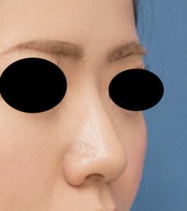 DSC03846鼻右ナナメ