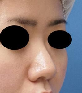 DSC02966鼻右ナナメ