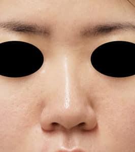 DSC02971鼻正面