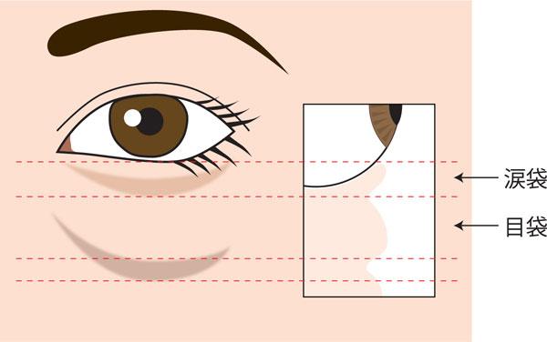 涙袋と目袋の断面