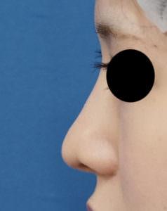 鼻尖縮小、鼻尖軟骨移植 術後左側面
