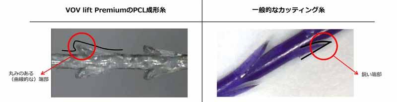 カッティング糸とVOVコグリフト糸との比較