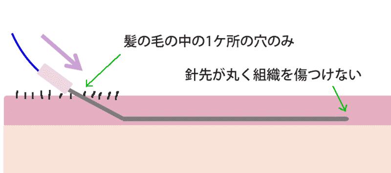 VOVコグリフトの挿入方法