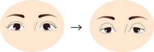 くぼみ目の変化