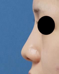 鼻尖縮小、鼻尖軟骨移植 術前 左側面