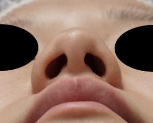 鼻尖縮小、鼻尖軟骨移植 術前下から