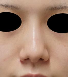 鼻尖縮小、鼻尖軟骨移植 術前正面