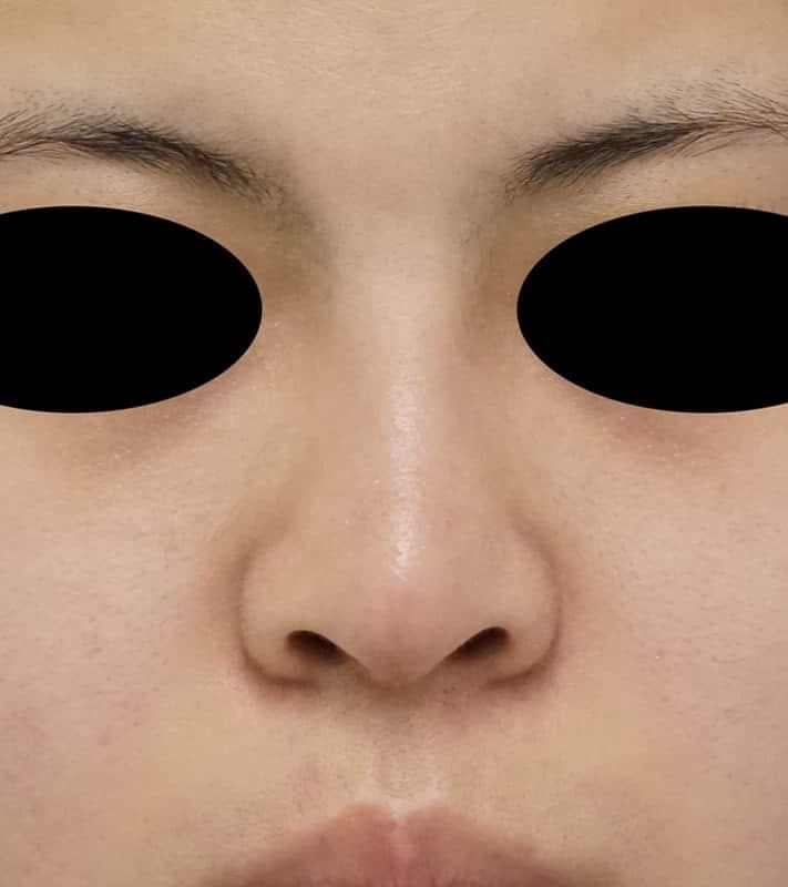 鼻中隔延長、鼻尖縮小、I型プロテーゼ 1ヶ月後のAfterの写真