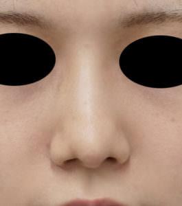 鼻尖縮小、鼻尖軟骨移植 術後正面