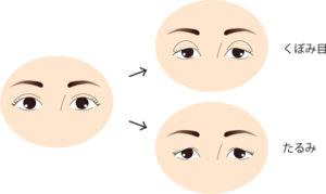 二重の人の加齢による変化の図
