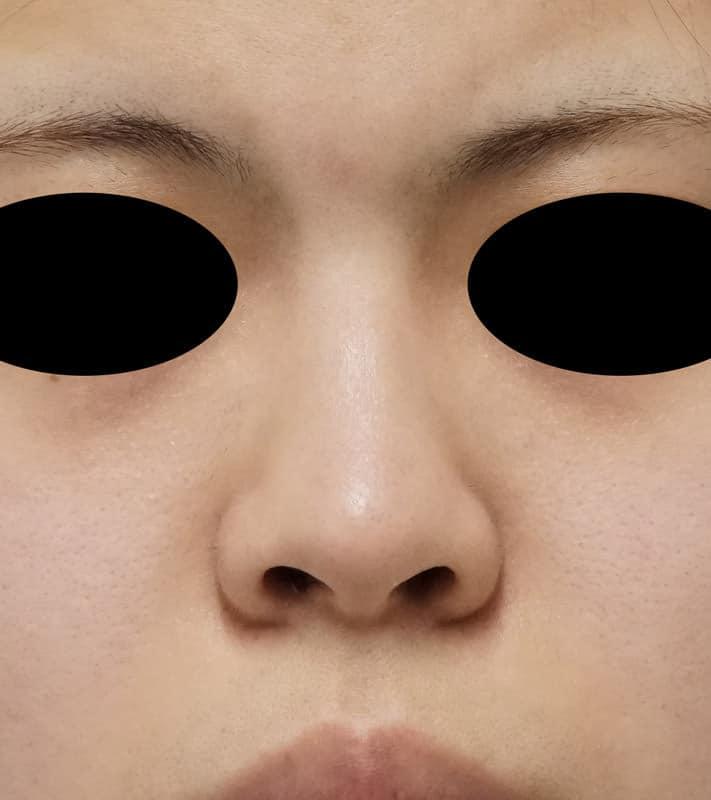 鼻中隔延長、鼻尖縮小、I型プロテーゼ 1ヶ月後のBefore写真